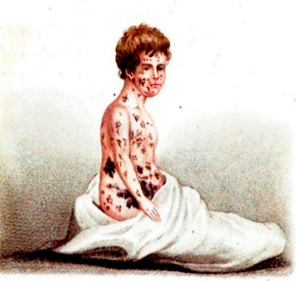 bexiga variola