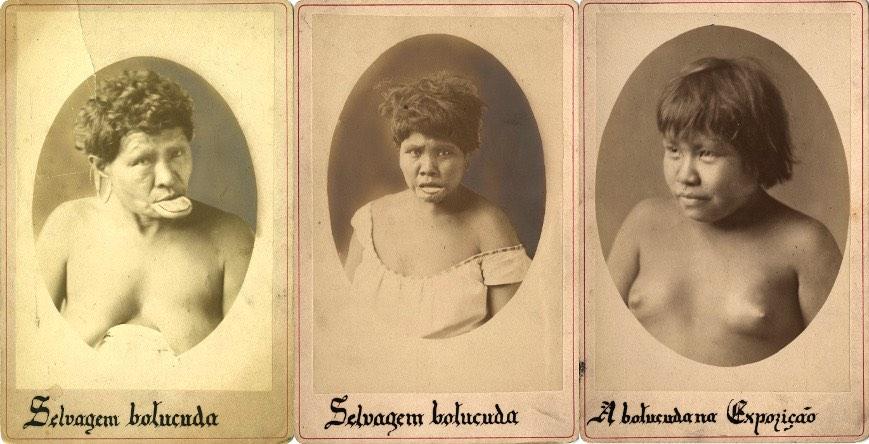 Zoológicos Humanos: Fotografia de rosto dos índios Botocudos para a Exposição Etnográfica no Brasil